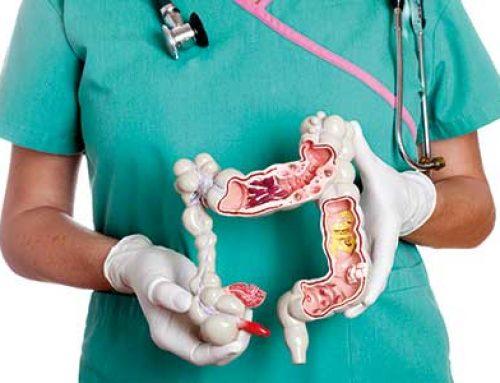Χειρουργική Αντιμετώπιση του Καρκίνου του Παχέος Εντέρου