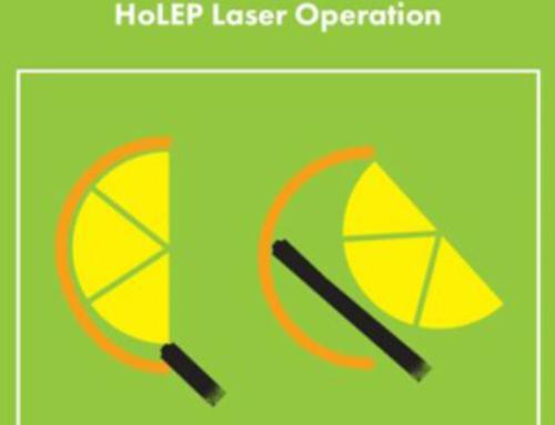 HoLEP : Holmium Laser εκπυρήνιση του προστάτη